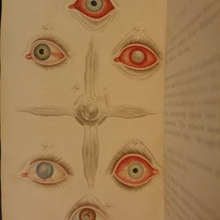 1820 1st ed EYE Diseases Benjamin Travers Ophthalmology Surgery MEDICINE Eyes